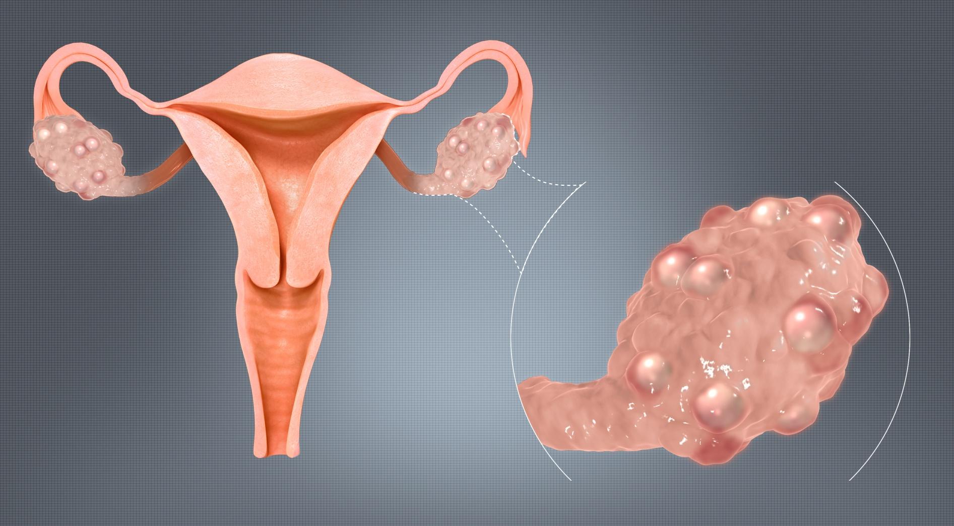 Polycisticke ovaria na vaječníkoch pcos